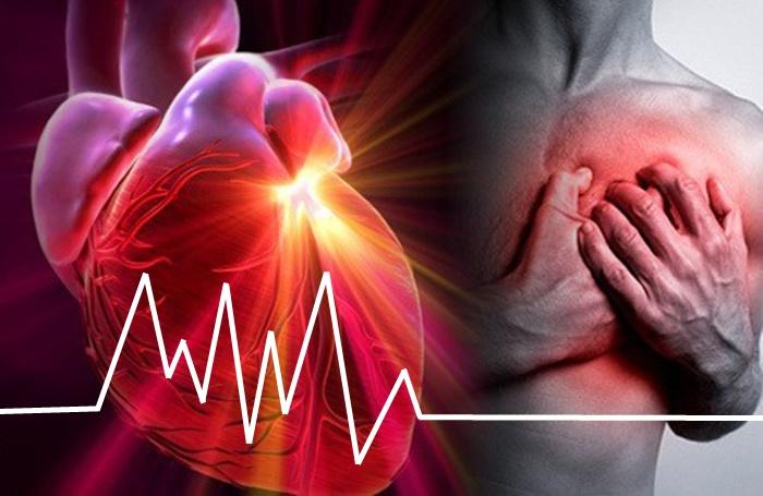 Servicio de noticias en salud Al Día – Un fármaco conocido hace décadas  reduce las secuelas del infarto
