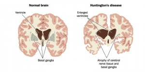 Huntingtons-disease-brain-cannabis-info