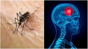 zika-virus-brain-cancer
